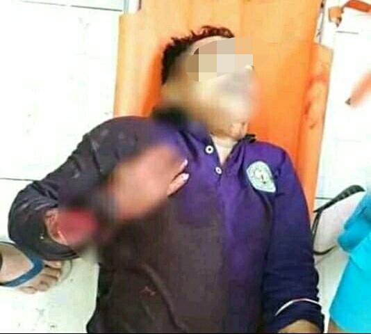Korban saat tergeletak pingsan usai mengalami luka bacokan hingga putus tangan kanannya.