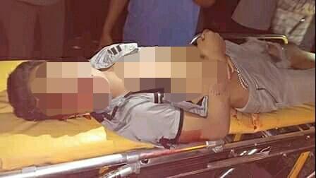 Korban saat dievakuasi warga dan petugas kepolisian seusai kejadian, Senin (8/7) malam.