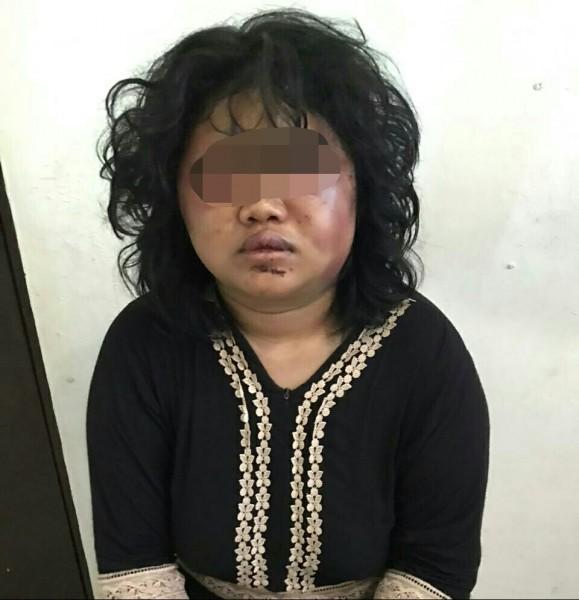 Korban saat menderita sakit usai babak belur dianiaya suaminya, ketika mengadu ke Polres Barut Selasa (8/10/2019).