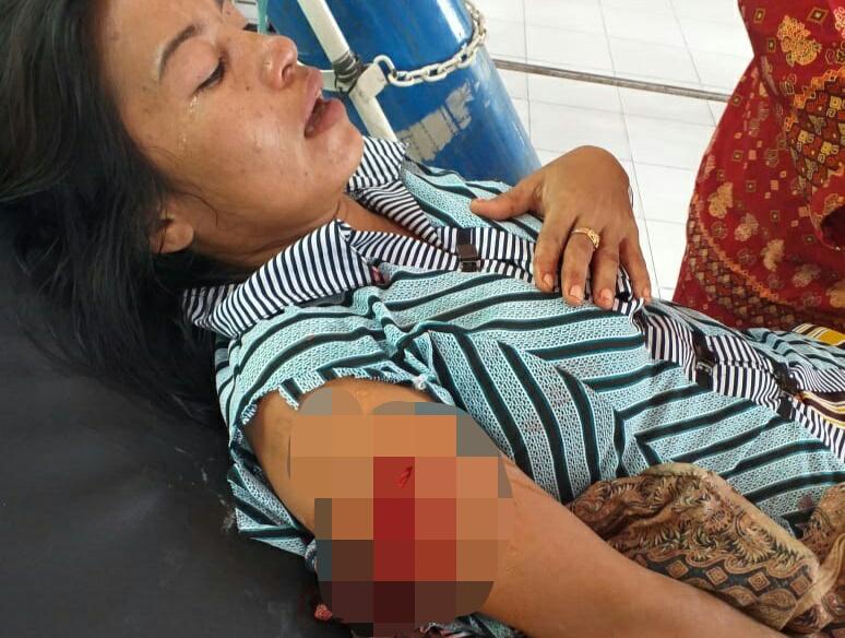 Korban terluka saat mendapat perawatan intensif di Puskesmas Kumai Minggu (9/2/2020).