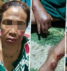 Korban saat mengalami luka usai mengalami penjambretan Jumat (28/2) tadi malam.