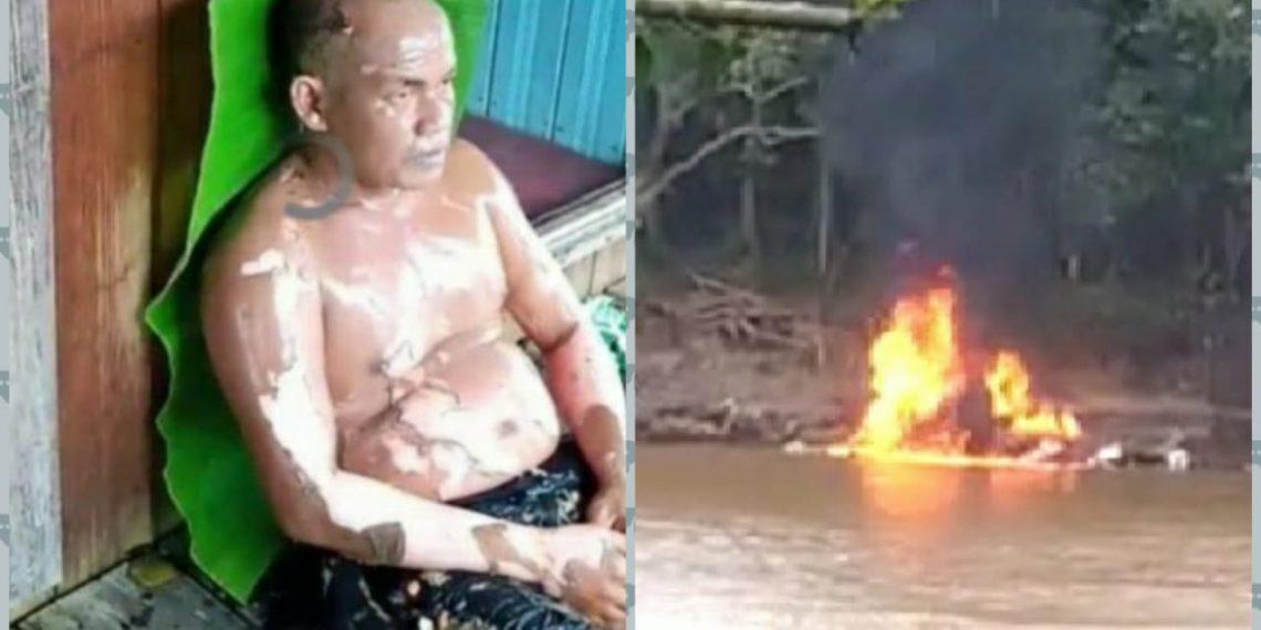 Korban luka bakar dan kelotok yang terbakar di DAS Barito Kelurahan Muara Laung I Kecamatan Laung Tuhup Kabupaten Murung Raya (Mura), Minggu (19/4/2020) pukul 11.15 Wib. Foto : eni