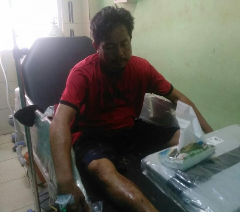 Pelaku saat mendapat perawatan di RSUD Marjani Sampit, usai dilumpuhkan, Selasa (27/7) tadi malam.